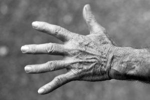Elderly patients malnutrition